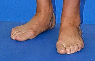 301 Moved Permanently Kate Middleton Bunions