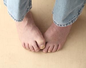 man tries to hide his toenail fungus