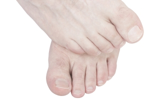 bigstock-Itchy-Feet--45520456